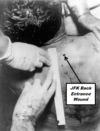 JFK Back Wound
